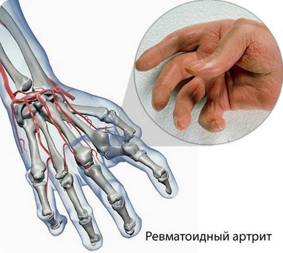Ревматоидный артрит на последних стадиях