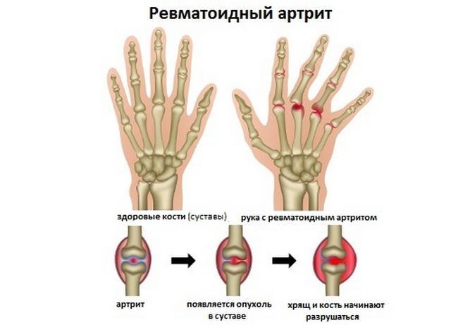 Ревматоидный артрит пальцев рук: первые симптомы