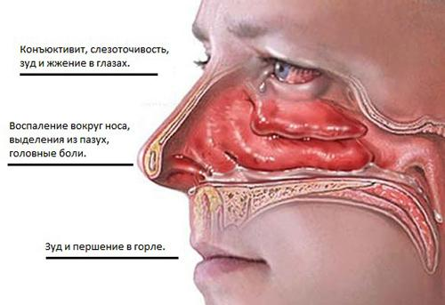 Симптомы аллергического гайморита