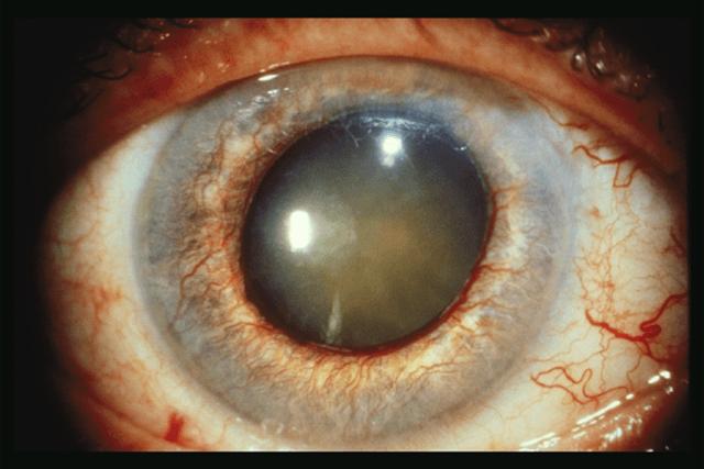 как выглядит глаукома глаза фото
