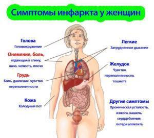 Симптомы инфаркта у женщин
