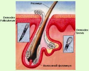 Среда обитания демодекса