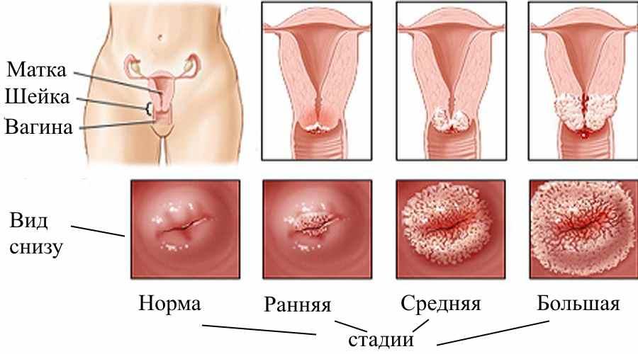 Зуд в интимных местах у женщин: лечение - подробная информация