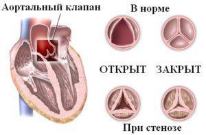 Стеноз клапанного типа