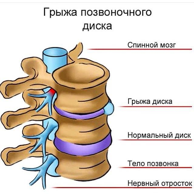 Схематичное изображение грыжи межпозвоночного диска
