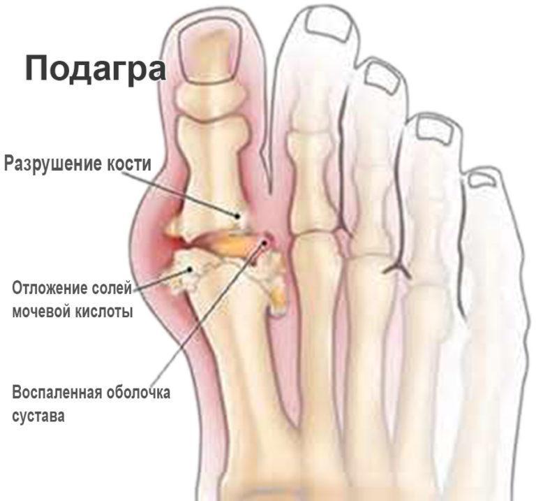 Лечение артрита у таксы