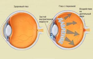Схема здорового глаза и глаза с глаукомой