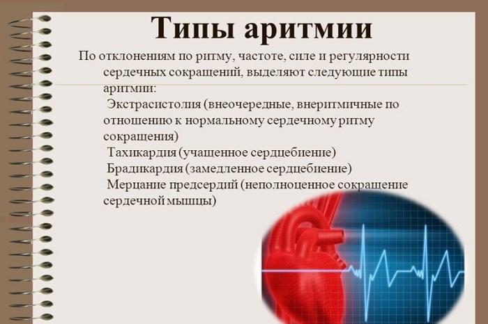 Типы аритмии