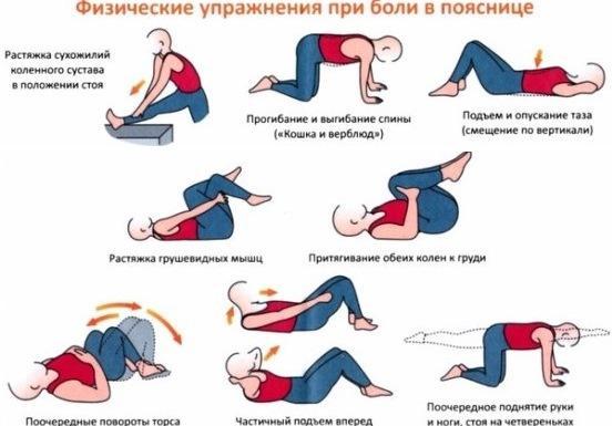 Физические упражнения при грыже поясничного отдела позвоночника