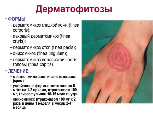 Формы и лечение дерматомикоза