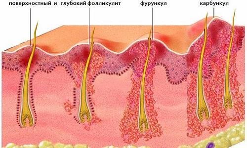 Фурункулы на лобковой части: причины
