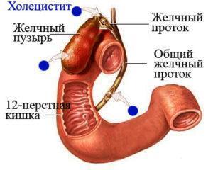 препараты от холецистита и панкреатита