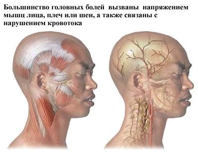 Частые причины головных болей