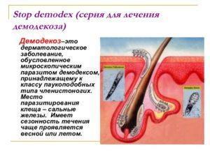 Что такое демодекоз