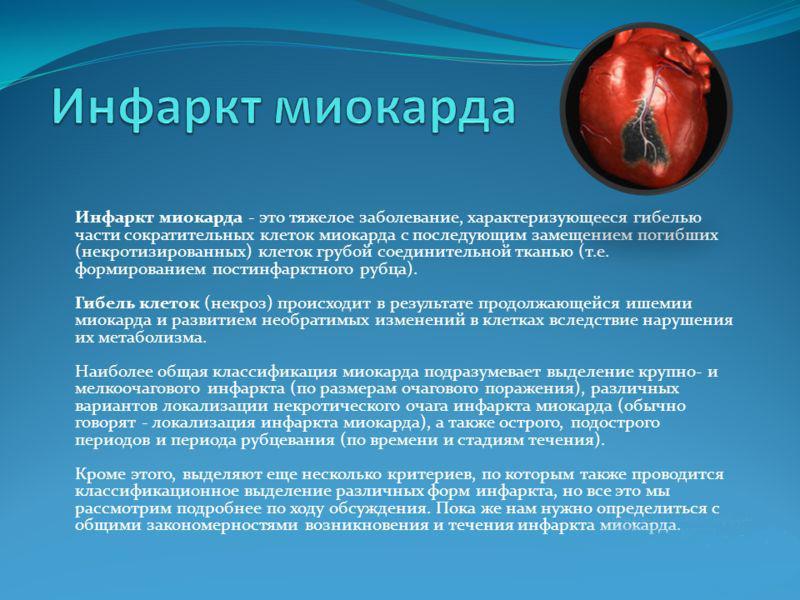 статистика заболеваемости инфарктами и
