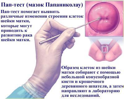 Что такое рар-тест