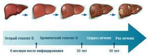 Этапы развития гепатита В
