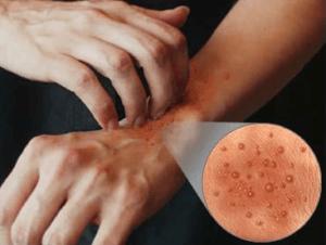 Низкие и высокие температуры могут вызвать дерматит на руках