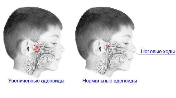 Аденоиды у детей: лечение в домашних условиях