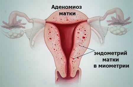 Аденомиоз матки: лечение, препараты
