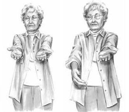 Больной человек не сумеет держать руки на одном уровне из-за нарушения координации