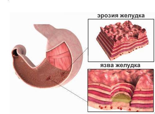 Гастрит эрозивный: симптомы и лечение