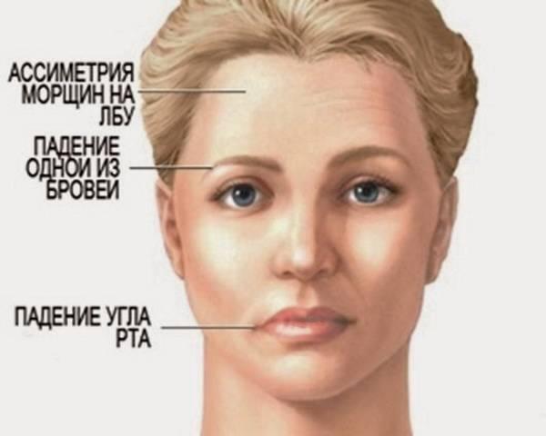 Женщина с менее выраженными симптомами микроинсульта