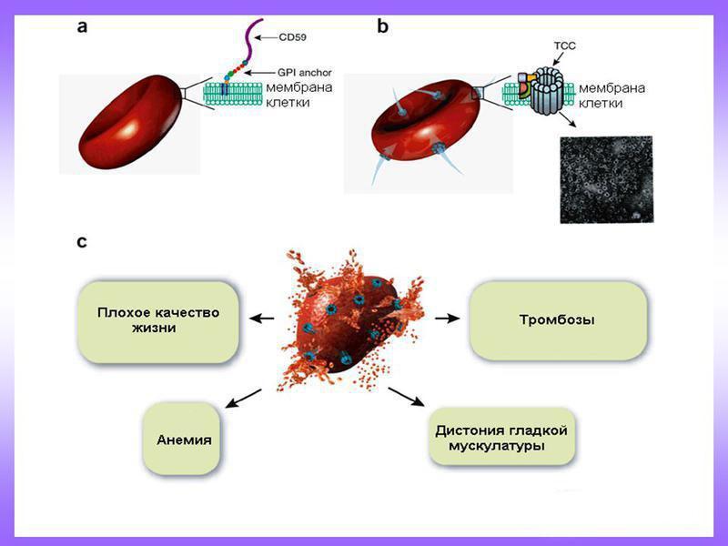 К чему ведет ночная пароксизмальная гемоглобинурия