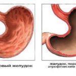 Лечение атрофического гастрита