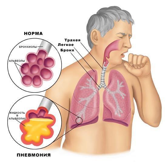 Лечение пневмонии народными средствами: самый популярный рецепт