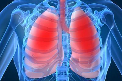 Как вылечить пневмонию народными средствами