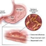 Лечение язвы желудка медикаментами