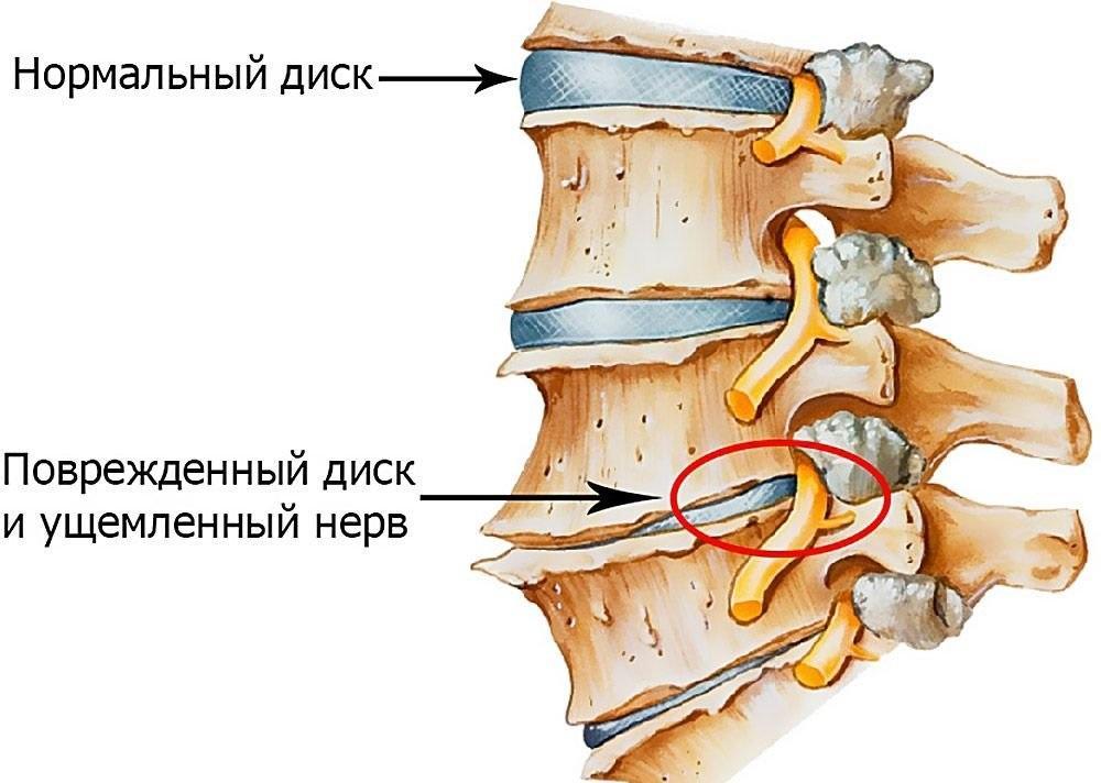 Межпозвоночный диск при остеохондрозе пояснично-крестцового отдела позвоночника