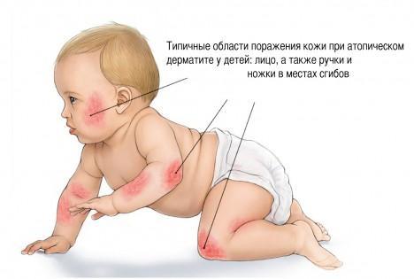 Места локализации атопического дерматита