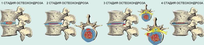 Наглядное изображение степени развития остеохондроза
