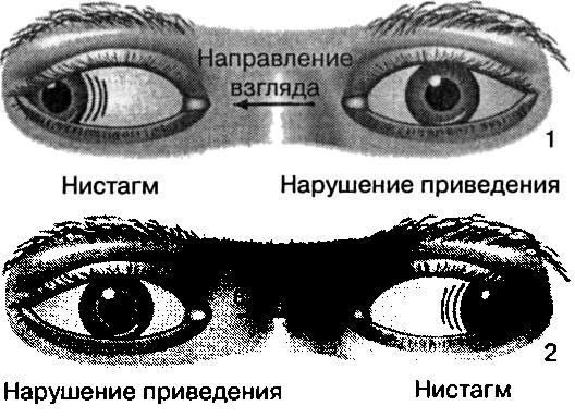 Невропатолог глаза