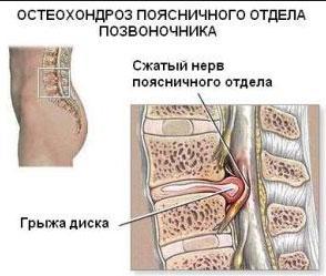 Остеохондроз пояснично-крестцового отдела позвоночника: лечение, уколы