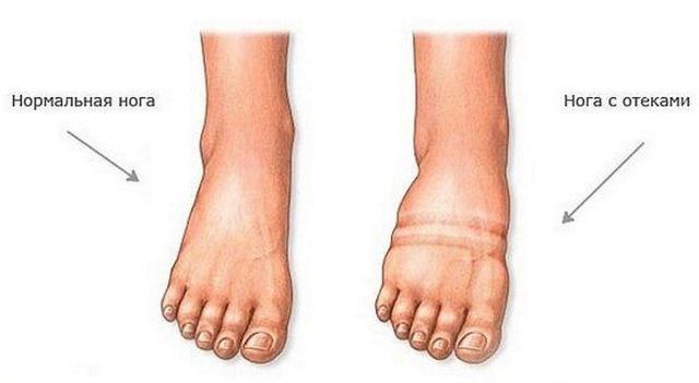 Отеки ног при сердечной недостаточности: лечение
