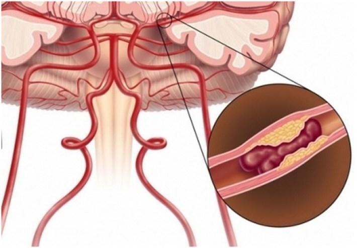 Признаки инсульта и микроинсульта