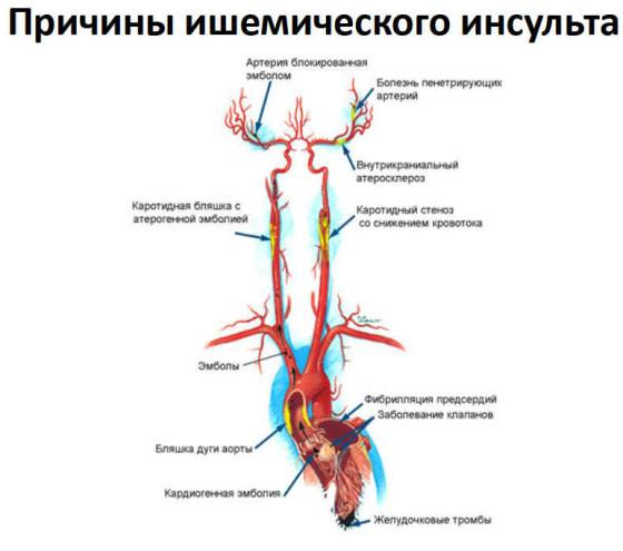 Причины ишемического инсульта