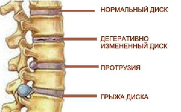 Развитие грыжи диска