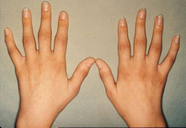 артрит: симптомы, лечение народными средствами