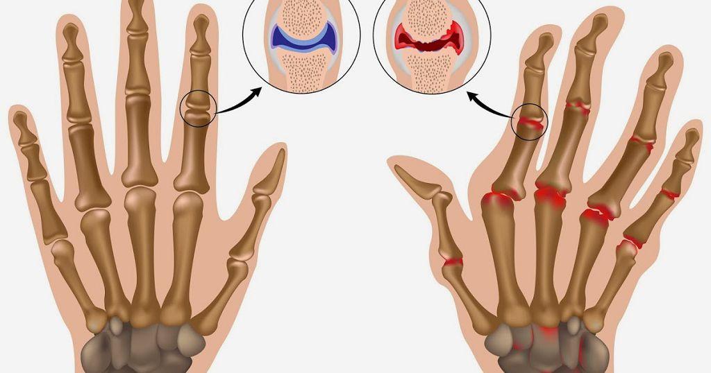 Ревматоидный артрит народные методы лечения