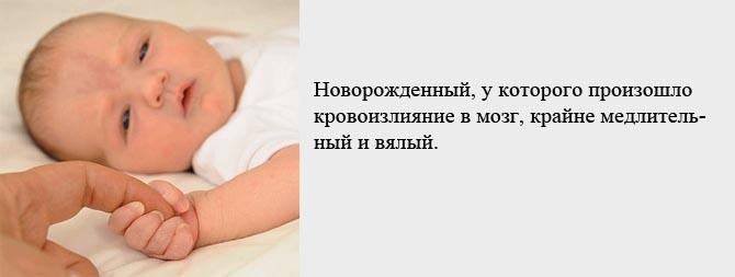 Симптомы кровоизлияния в мозг у новорожденного