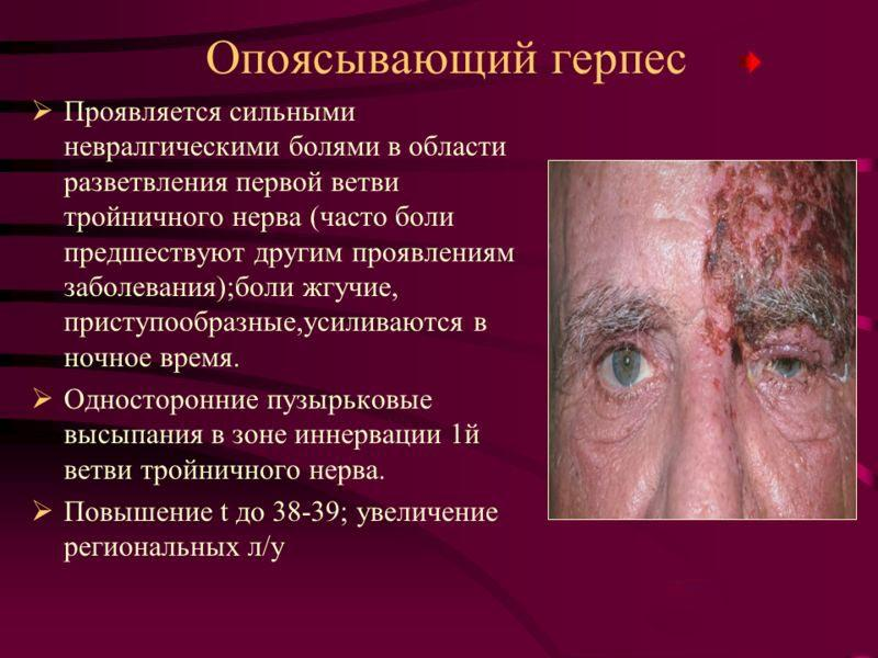 Симптомы опоясывающего герпеса