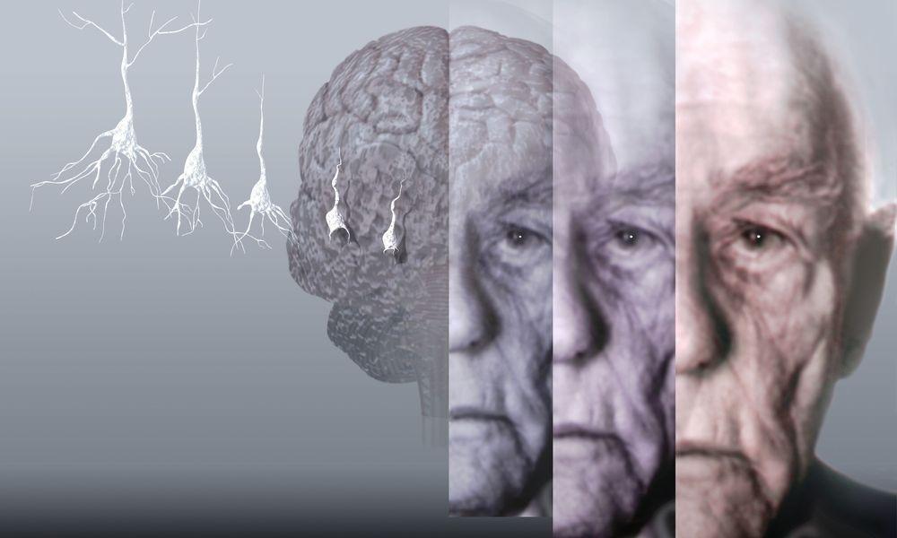 Старческая деменция: симптомы