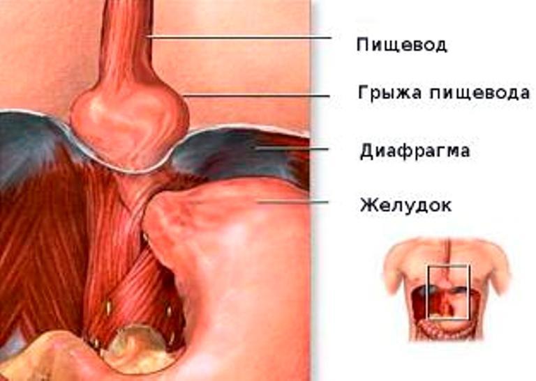 Схематичное изображение грыжи пищевода