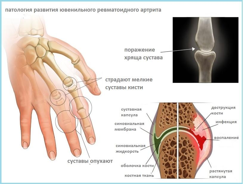 Схематичное изображение ревматоидного артрита