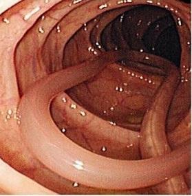 От чего погибают глисты и паразиты