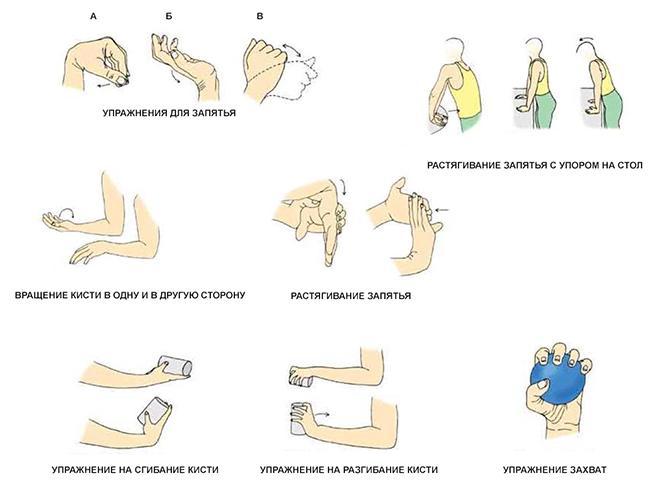 Упражнения при артрите рук